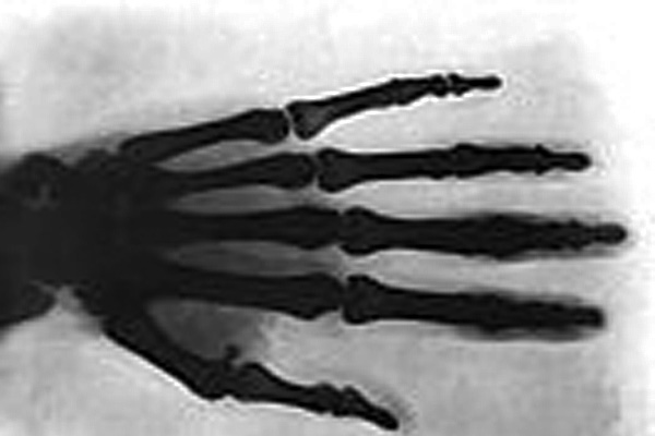Tesla's hand in one of the first X-rays